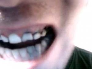 Американца посадили в тюрьму за гнилые зубы дочери